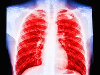 talcum powder  talc deadly cancers asbestos link