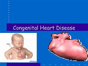 Congenital Disorder Images - Reverse Search