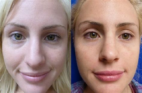 can restylane be used under eyes