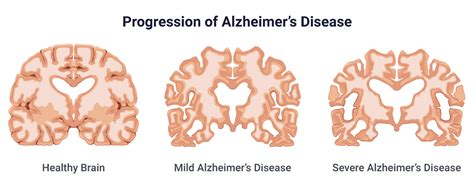 Alzheimer disease is characterized by a progressive and irreversible decline in memory and deterioration of other cognitive abilities. Alzheimer's Disease: Causes, Stages, Symptoms & Prevention