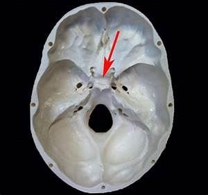 Sella turcica | Head and Neck Anatomy | Pinterest