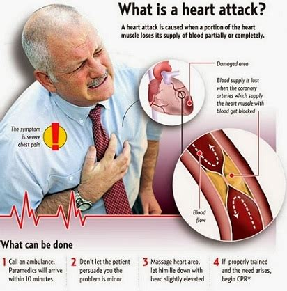 Myocardial Infarction Causes, Symptoms And Treatment Of. Major Depressive Disorder Signs. July Signs Of Stroke. Impulsive Signs. Manic Signs. Water Lily Sign Signs. Cry Signs. Meme Signs. Old Fashioned Signs