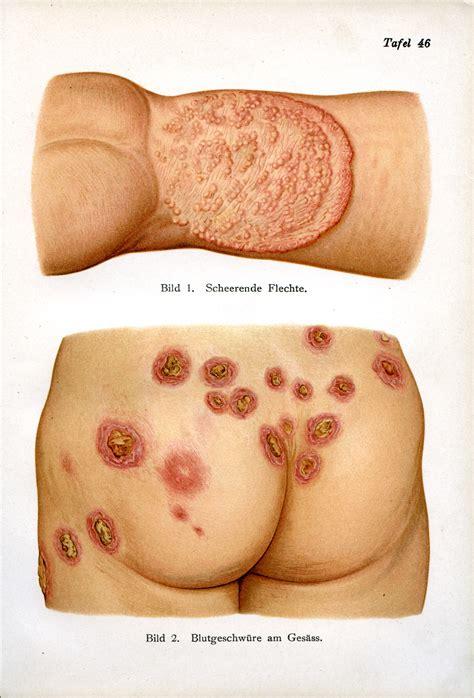 Skin Boils On Bum
