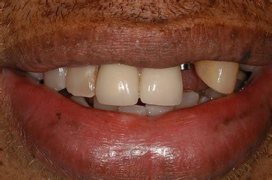 cosmetic dentistry dental restoration  las vegas