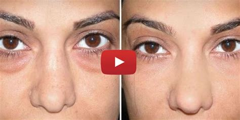 baking soda circles under eye rid undereye using