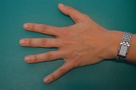 dedo hinchado rojo dolor inflamacion indice entumecido