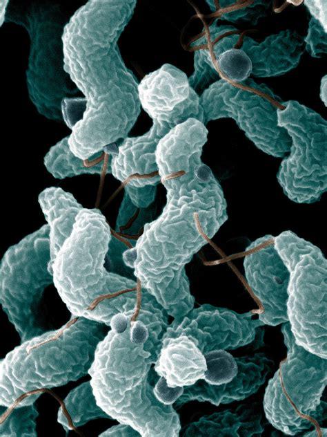 Campylobacter Enteritis Causes Symptoms Treatment