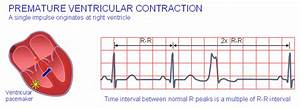 A Premature Ventricular Contraction