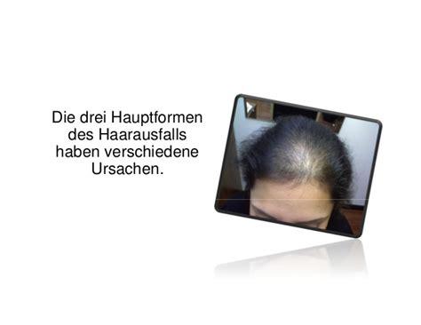 Was Hilft Gegen Wühlmäuse by Was Hilft Gegen Haarausfall Kreisrunder Haarausfall Bart