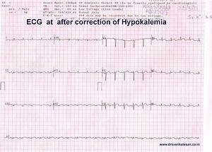 effect of hypokalemia on ecg | Dr.S.Venkatesan MD