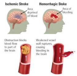 Does Cell Therapy Hold The Key To Treating Stroke? - Seeking Alpha Stroke