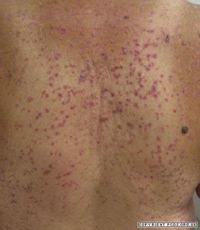 lisinopril rash side effects cipro online