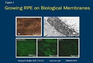 Bench Research on Stem Cells | Retina Vitreous Resource Center