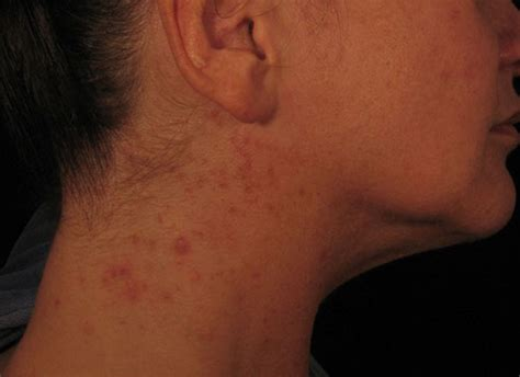 Florid Rash Caused by Vitamin B12 Injections Administered