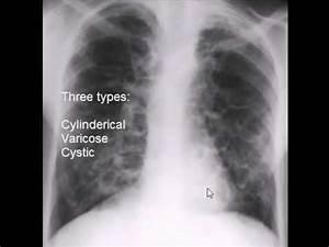 chest x-ray, bronchiectasis - YouTube