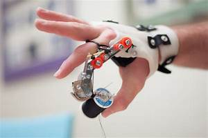 3ders org - Get back to normal life with DIY prosthetic