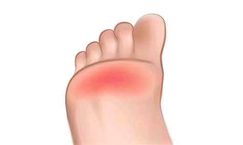 m 233 tatarsalgie clinique du pied cdp