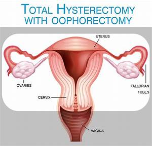 What Is A Hysterectomy