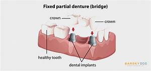 Dental Implants Vs Dental Bridges  Similarities