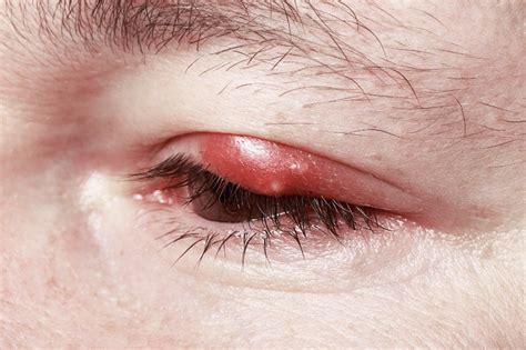hagelkorn chalazion entstehung symptome behandlung