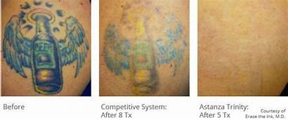 Laser Removal Tattoo Trinity Eternity Ruby Power