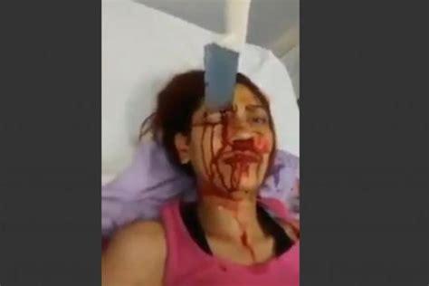 la tete dans la cuisine vidéo une femme survit avec un couteau de cuisine planté