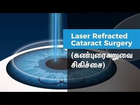 Best Eye Laser Treatment In Kerala | Health Products Reviews