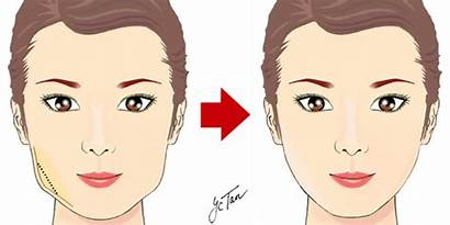 Face Facial Surgery Restructuring Bone Shaped Belle
