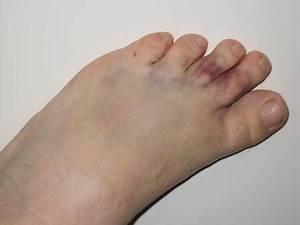 Боль в суставе пальца и слабость в руке