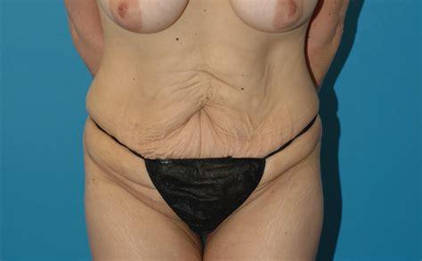 Tummy Tuck Surgeon Seattle Abdominoplasty Sattler