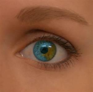 Sectoral heterochromia | Heterochromia | Pinterest