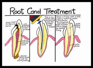 Pin By Cn Dental On About Teeth Knowledge