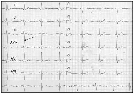 tujuan pemeriksaan ekg elektrokardiografi pada pasien