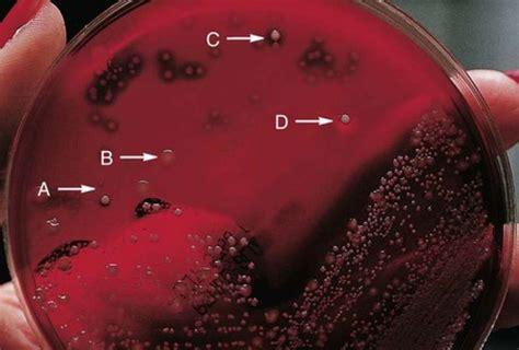 hemolytic reactions