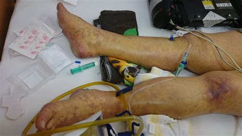 Причины, симптомы, диагностика и лечение сепсиса. File:Sepsis-Mikrothomben2.JPG - Wikimedia Commons