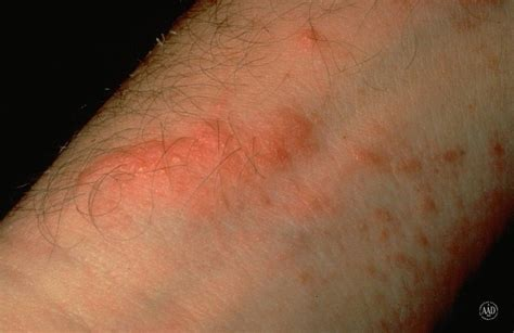 poison rash treating poison ivy ease the itch with tips from dermatologists