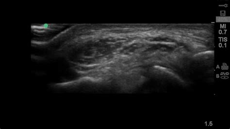 Thickened and symptomatic ulnar nerve at the elbow on ...