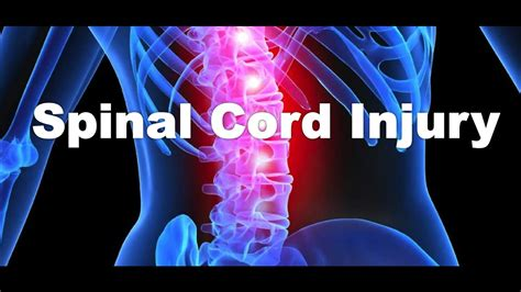 What Is A Spinal Cord Injury?