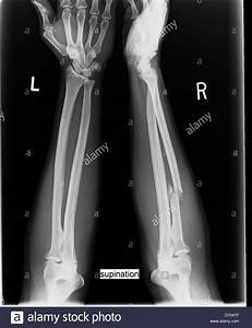 Comparative X-ray of human forearms displays fracture of ...