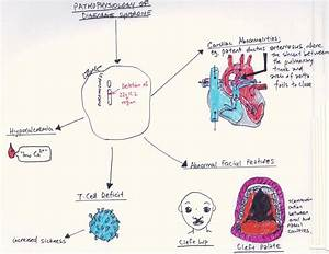 File:DiGeorge Pathophysiology Diagram.jpg - Embryology