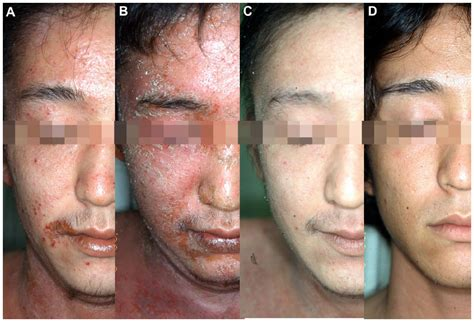Steroid Withdrawal Effects Long-Term Topical