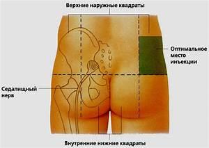 Последствия не лечения шейного остеохондроза