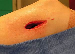 Cpt U00ae Coding  Perfect Wound Debridement Reporting With