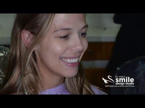invisalign smile docs perth clear braces