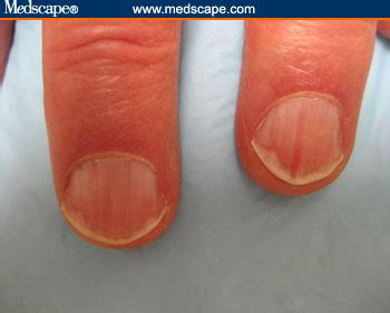Nail Bed Melanoma Symptoms. Should I Buy Rental Car Insurance. Fuel Efficient Hybrid Suv Hotels Nice France. Trimalleolar Fracture Physical Therapy. How To Send Fax From Computer. Electrician In New York Us Agencies Insurance. Compare Interest Rates On Savings Accounts. Graduate Programs In School Counseling. Genes That Cause Cancer How Is Deodorant Made