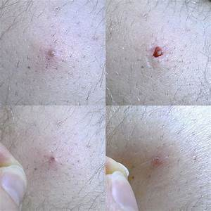 Ingrown Hair: Symptom, Treatment and Prevention | MD ...