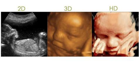 ultrasonido   prenatal puebla