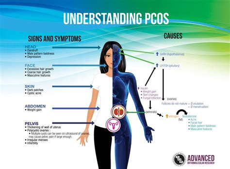 Know The Symptoms Of Polycystic Ovarian Syndrome