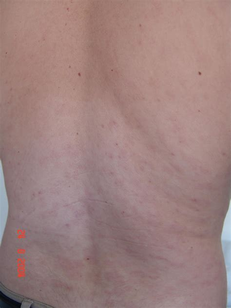 Secondary Syphilis Pictures Photos