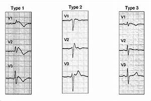 Brugada Syndrome Signs images